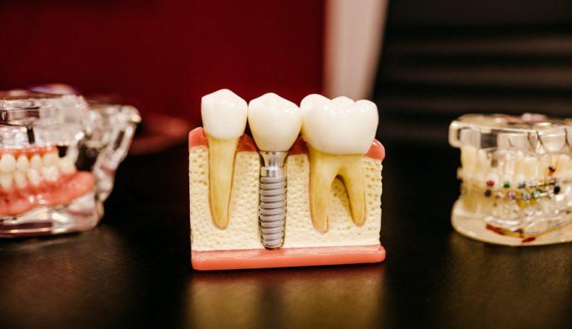 Tandläkare i Östermalm gör dina tänder snyggare