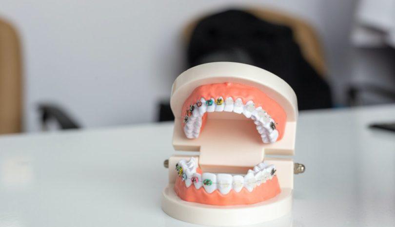 Tandläkare i Upplandsbro – hitta rätt!
